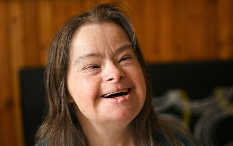 young adult woman with down's syndrome