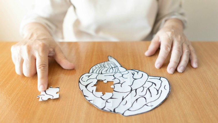 Elderly woman putting missing jigsaw puzzle piece into place as a human brain shape.
