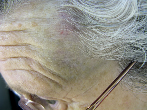 Older woman with a head injury