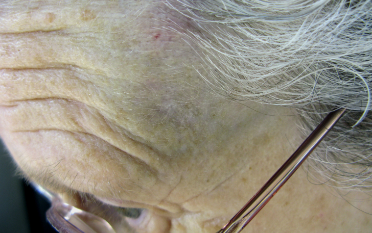 Description_of_image_used_in_safeguarding_vulnerable_groups_legislation_older_woman_with_bruise_on_forehead_EMWelch_REX_Shutterstock
