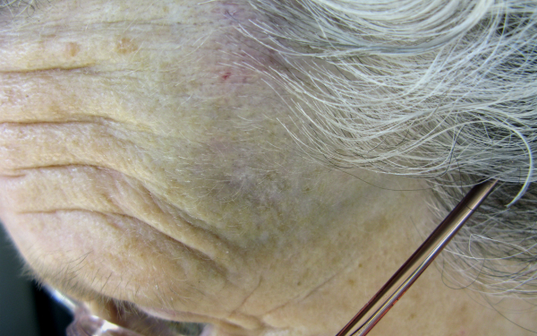 Older person with bruise